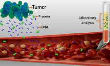New 'Liquid Biopsy' Shows Early Promise in Detecting Cancer